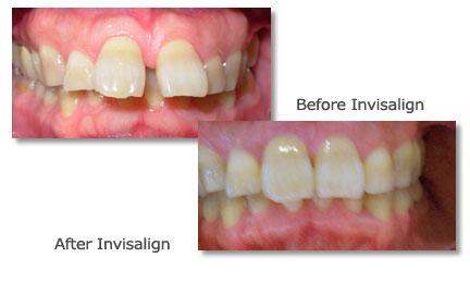 Palo Alto Cosmetic Dentistry Smile Gallery   Teeth ...