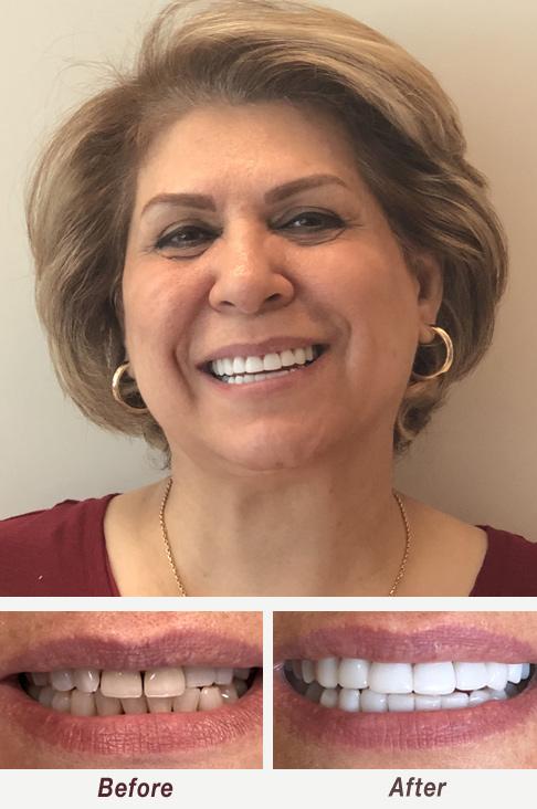 Smile Makeover Cerec Veneers Palo Alto