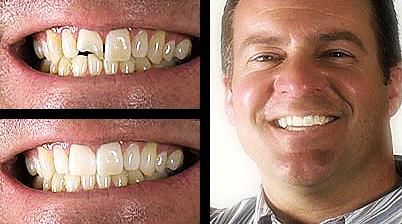 Dental Teeth Bonding in Palo Alto